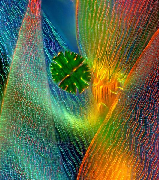 micrasterias-glon-jednokomorkowy-i-torfowiec-mikrofotografia-2